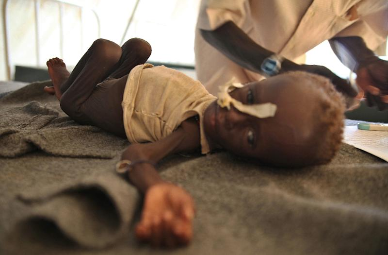 A malnourished child is treated on June 15, 2012 at a Medecins Sans Frontieres (Doctors Without Borders - MSF) clinic at the Jamam refugee camp, some 60 kms (40 miles) south of the border with Sudan (AFP Photo/Hannah McNeish)