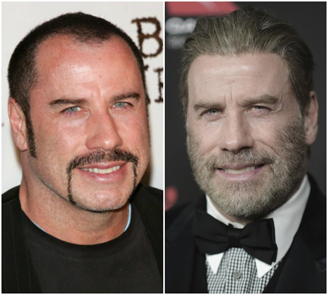 <p>Cada vez son más los famosos que luchan contra la alopecia sometiéndose a un injerto capilar. Uno de ellos es John Travolta, cuya incipiente calvicie era evidente hace unos años y actualmente luce una buena mata de pelo. (Foto: Lisa Maree Williams / Getty Images / Richard Shotwell / Invision / AP). </p>
