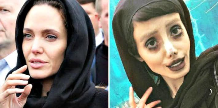 Before Amp After Photos Of The Woman Rumored To Have Undergone 50 Surgeries To Look Like Angelina