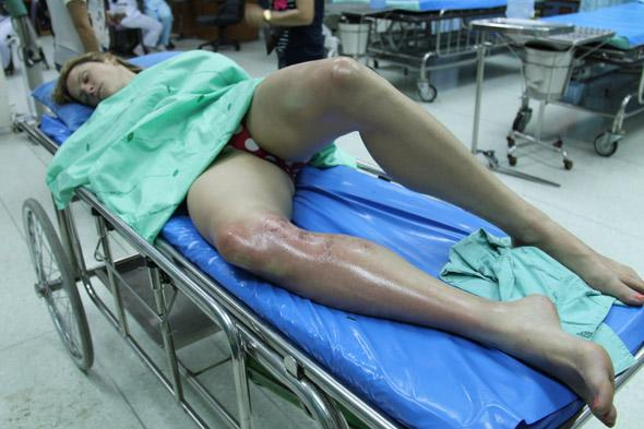 British holidaymaker scarred for life by jellyfish in Thailand