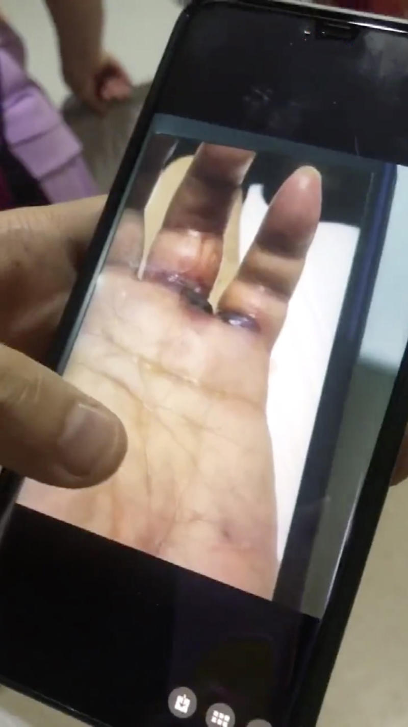 Picture shows the infection beginning to grow on Mr Wang's hand. Source: AsiaWire/Australscope