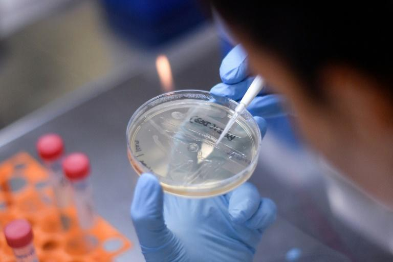 More than 100 vaccine research projects are under way around the world according to an analysis (AFP Photo/DOUGLAS MAGNO)