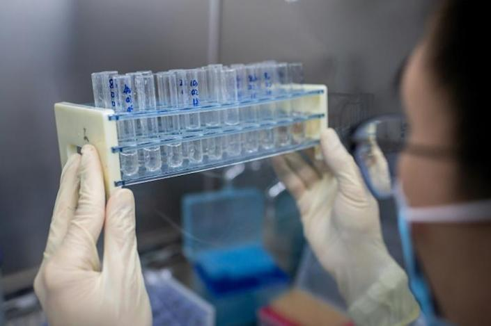 Governments and private companies around the world -- like Sinovac Biotech in Beijing, seen here -- are working to develop a vaccine for the novel coronavirus (AFP Photo/NICOLAS ASFOURI)