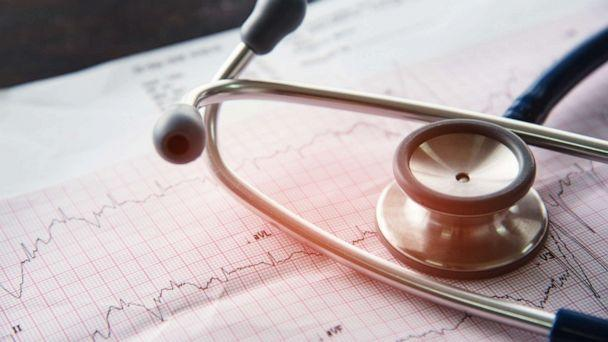 PHOTO: A stethoscope sits on a print out of an EKG test result. (STOCK PHOTO/Getty Images)