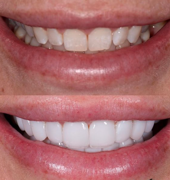 Melissa Rawson before and after veneers