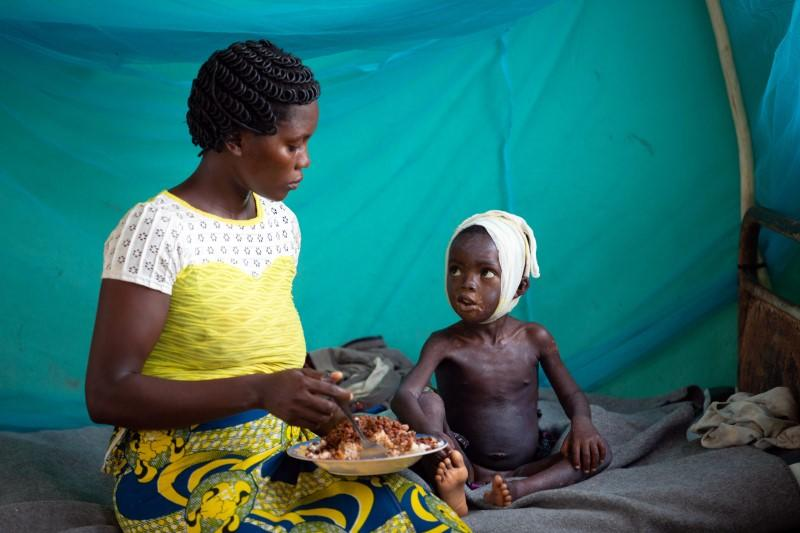 Allay Ngandema, who has developed complications after contracting measles, eats lunch with his mother Maboa Alpha in the measles isolation ward in Boso-Manzi hospital in Mongala province
