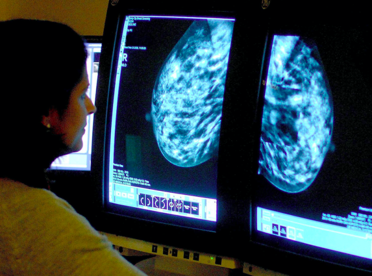 Screening: Women with non-lump symptoms of breast cancer are delaying visit to the doctor (PA)