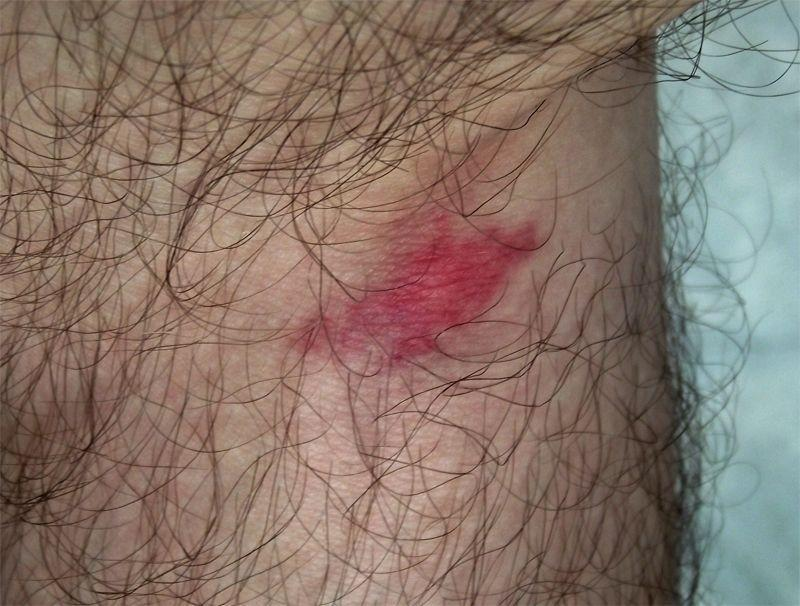 """<p><strong>What it looks like:</strong> There are a few major fly species that bother people in the United States, including deer, horse, stable, and black flies. Bites vary by species and person, but they're often raised, red bumps or welts. Some might even bleed. Blackfly bites also might swell. (Pictured here is a horse fly bite.)</p><p><strong>Symptoms to note:</strong> More often than not, fly bites are going to hurt. After the pain subsides, some may also become itchy, but most fly bites are innocuous. In rare cases, deer flies can pass on the bacterial disease <a href=""""https://www.cdc.gov/tularemia/index.html"""" rel=""""nofollow noopener"""" target=""""_blank"""" data-ylk=""""slk:tularemia"""" class=""""link rapid-noclick-resp"""">tularemia</a> (which can cause a painful ulcer), and blackfly bites can lead to a flu-like condition called """"blackfly fever.""""</p><p><strong>Related: <a href=""""https://www.prevention.com/life/a29366872/how-to-get-rid-of-fruit-flies/"""" rel=""""nofollow noopener"""" target=""""_blank"""" data-ylk=""""slk:How to Get Rid of Fruit Flies"""" class=""""link rapid-noclick-resp"""">How to Get Rid of Fruit Flies</a></strong></p>"""