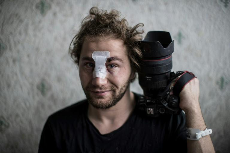 24-year-old Syrian freelance photographer Ameer al-Halbi was injured during Saturday clashes