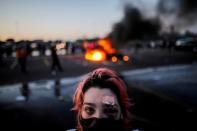 Perez is pictured with bruising around her eye and a plaster on her forehead, injuries sustained from rubber bullets during protests yesterday, in Minneapolis