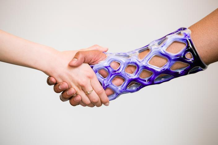 Cast21 has created a mesh sleeve that could replace traditional casts. [Photo: SWNS]
