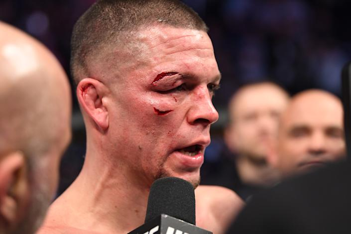 NEW YORK, NEW YORK - NOVEMBER 02: Nate Diaz is interviewed after his loss (doctor's stoppage) to Jorge Masvidal in their welterweight bout for the BMF title during the UFC 244 event at Madison Square Garden on November 02, 2019 in New York City. (Photo by Josh Hedges/Zuffa LLC via Getty Images)