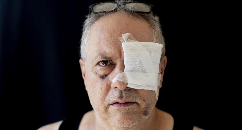 Tony Helou, 63, unemployed, who got injured at his apartment during the Aug. 4 explosion that killed more than 170 people, injured thousands and caused widespread destruction, poses for a photograph at his apartment in Beirut, Lebanon, Saturday, Aug. 15, 2020. (AP Photo/Hassan Ammar)