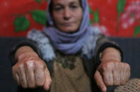 In this Thursday, Feb. 28, 2019 photo, Baseh Hammo, a Yazidi woman who escaped enslavement by Islamic State group militants, shows the injuries to her hands that was carried out by an Albanian who forced her to put her hands on hot asphalt, then stomped on them with his boots, at a relatives's tent in a camp for displaced people outside Dahuk, Iraq. Yazidi women enslaved by the Islamic State group who escaped captivity say there could be hundreds of other women still missing, women who may never return home. (AP Photo/Khalid Mohammed)