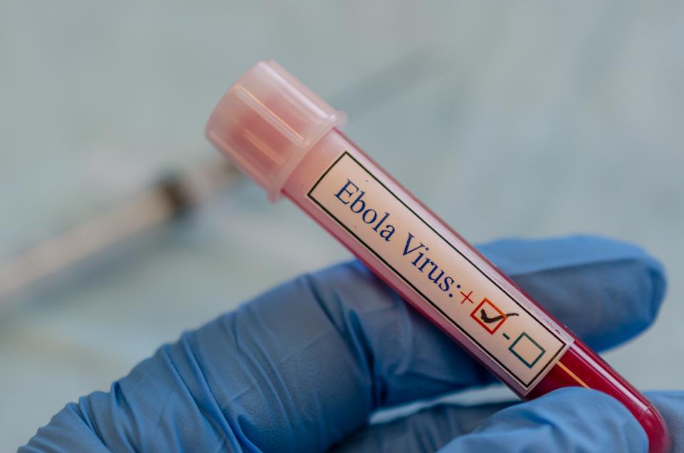 A fictional ebola virus positive blood sample