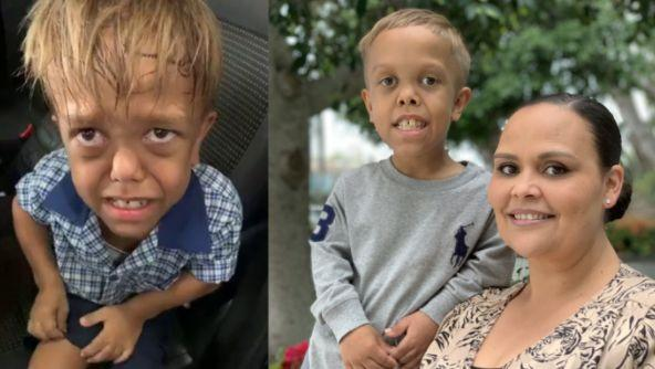 Quaden and his mum Yarraka sat down with the ABC's 'Australian Story' to reveal what really happened in the aftermath of the viral bullying video. (Photo: ABC 'Australian Story')