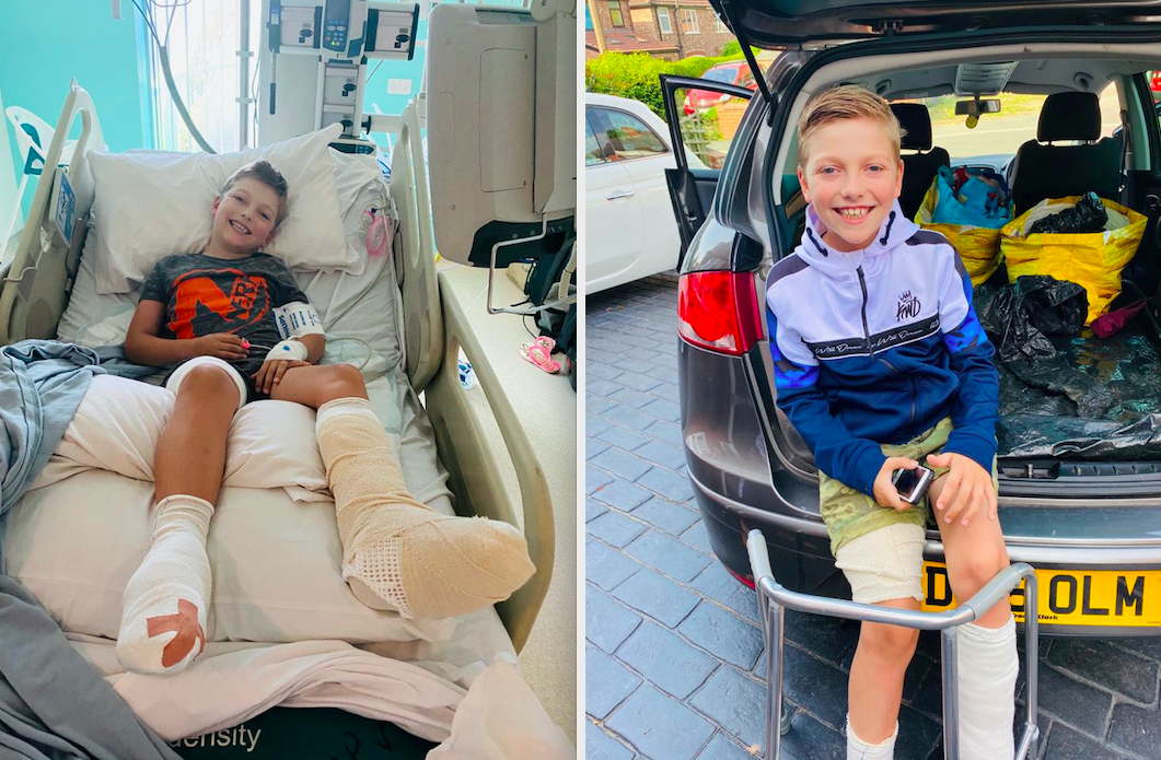 Will Tyler is now able to walk unaided and wears compression socks 23 hours a day to protect the scars as well as a splint at night. (SWNS)