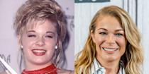 "<p>""LeAnn had small spaces between her teeth. These spaces can be closed in a number of ways, such as braces, bonding, and porcelain veneers. It appears LeAnn may have opted for porcelain veneers which close the spaces, lighten the color, and create balance in the smile and harmony in the face.""</p>"