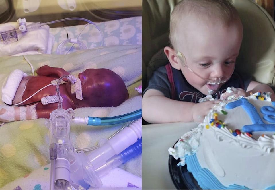 Richard Hutchinson, the world's most premature baby, has defied odds to celebrate his first birthday. (SWNS)
