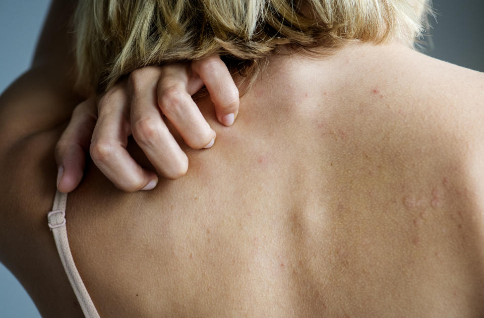 Photo of a white woman scratching her upper back which has a red rash