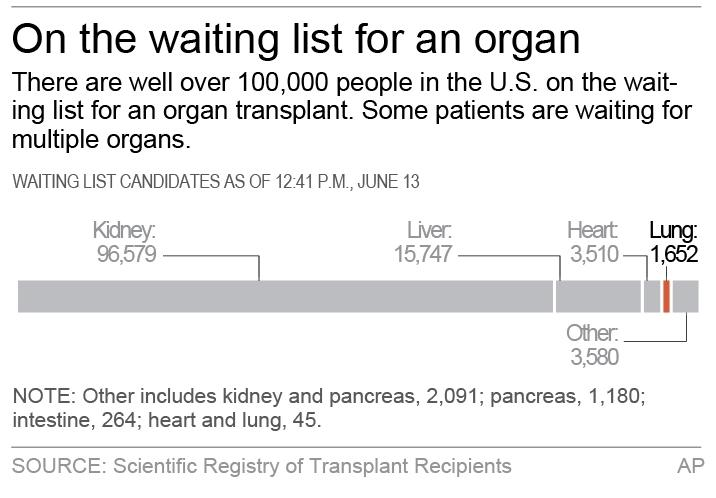 Chart shows the number of people on the waiting list for an organ transplant