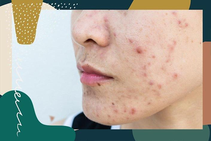 The Ultimate Guide To Treating Cystic Acne According To Experts