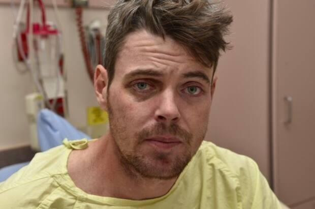 Daniel Haworth suffered a fractured skull and brain bleed at the hands of Calgary police officer Trevor Lindsay, who was convicted of aggravated assault.