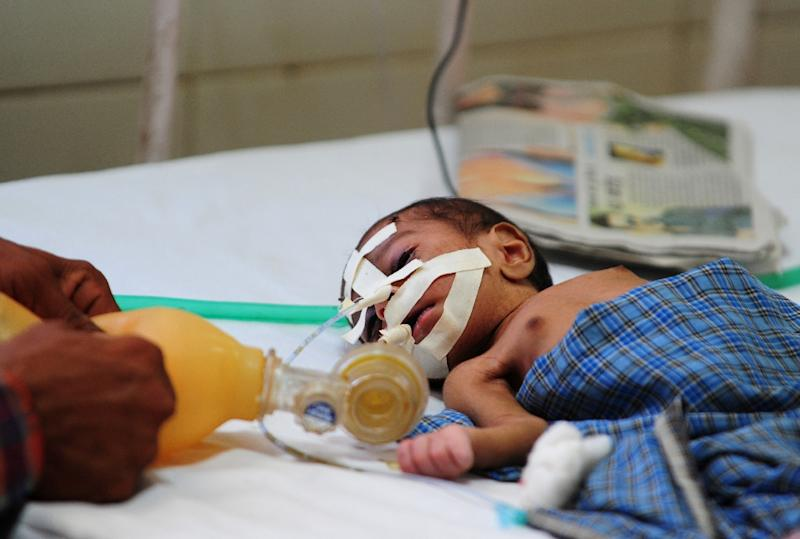 An Indian baby suffering from diarrhoea is treated at a hospital in Allahabad in 2013 (AFP Photo/Sanjay Kanojia)