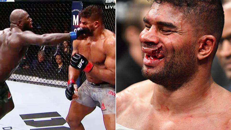 Pictured here, Alistair Overeem suffered a gruesome lip injury in his UFC defeat.