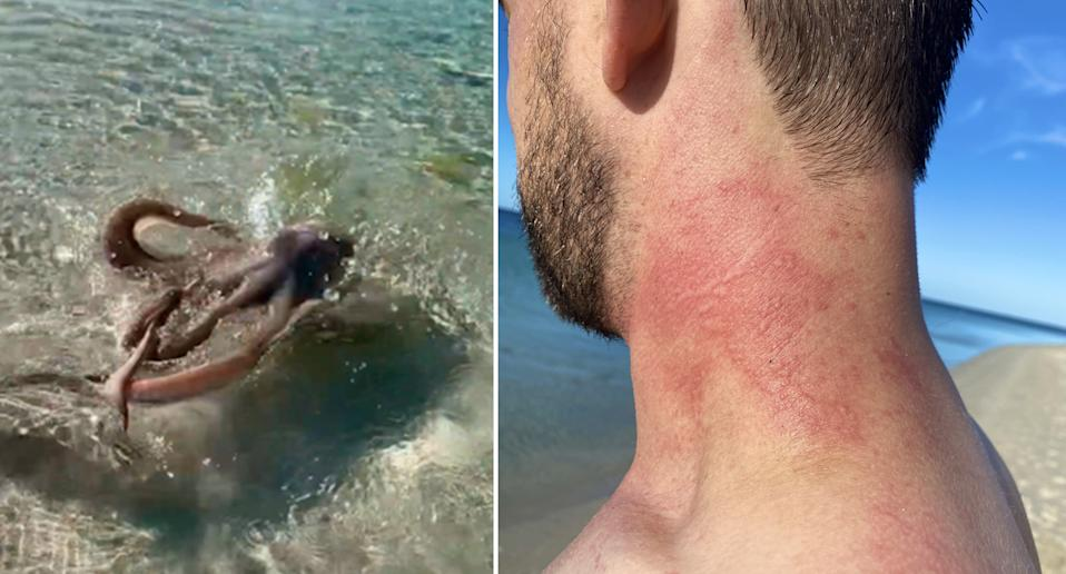 An octopus (left) lashed out at Lance Karlson and left him with red marks similar to sunburn (right) while swimming at a WA beach.