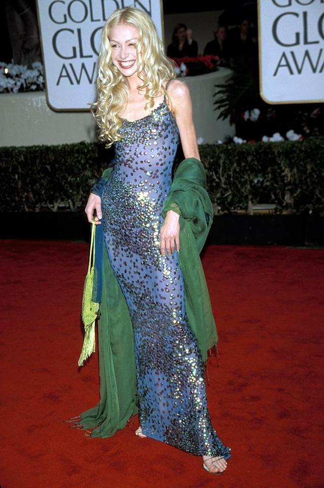 "Portia de Rossi must have mistook the 2000 Golden Globes for a gentleman's club off the Vegas strip. Talk about the opposite of classy. Kevin Mazur/<a href=""http://www.wireimage.com"" target=""new"">WireImage.com</a> - January 23, 2000"