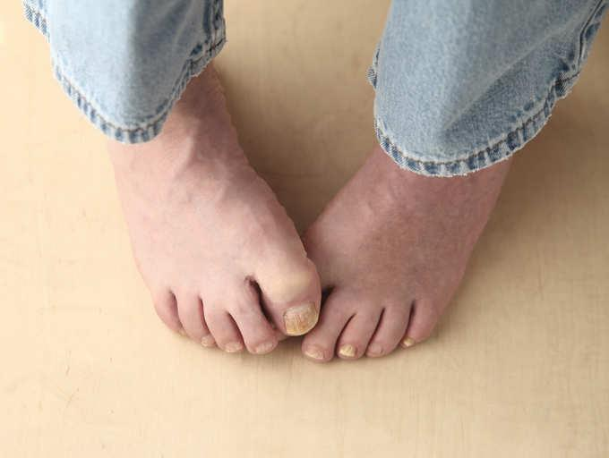 What is the prognosis of fungal nail infection?