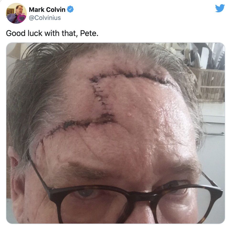 Close-up of Mark Colvin's melanoma removal scarring