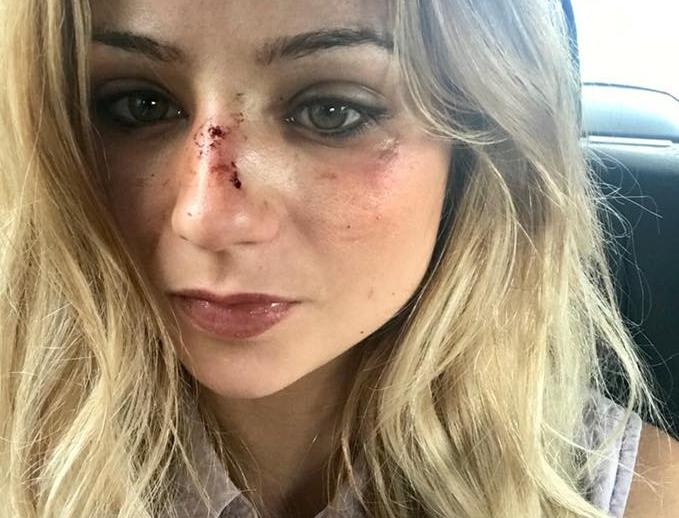 Johanna Clermont pictured with cuts on her face.