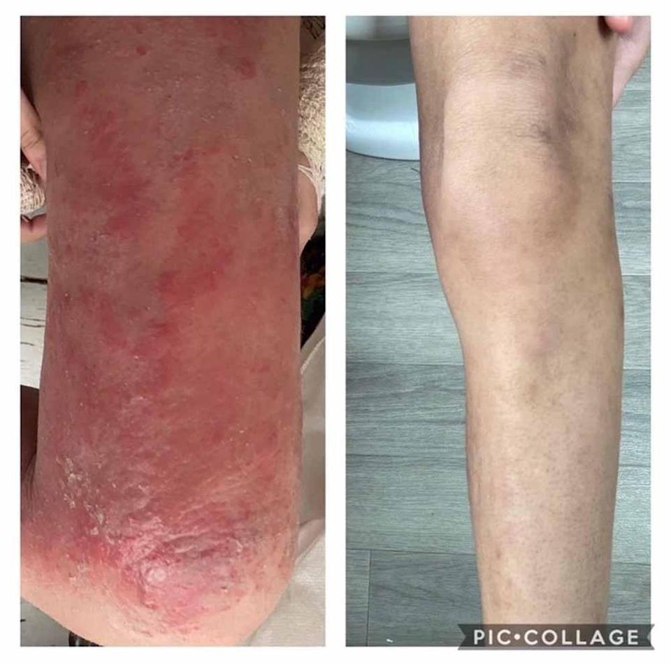 Scarlet's legs and knees became red and sore. PA REAL LIFE COLLECT