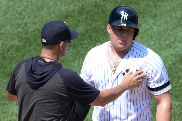 Luke Voit's toughness will never be questioned after injury scare