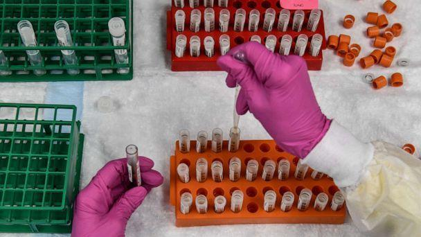 PHOTO: In this file photo taken on August 13, 2020, a lab technician sorts blood samples for a COVID-19 vaccination study at the Research Centers of America in Hollywood, Florida. (Chandan Khanna/AFP via Getty Images)