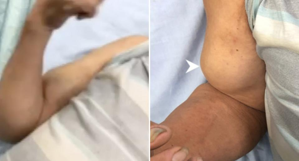 A 72-year-old man diagnosed with Popeye sign on his arm.