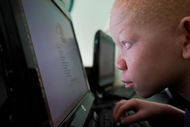 <p>Mwigulu Magesaa 14, a Tanzanian with albinism who had an arm chopped off in a witchcraft-driven attack, looks at a computer screen at the Global Medical Relief Fund house in the Staten Island borough of New York City, June 2, 2017. (Photo: Carlo Allegri/Reuters) </p>