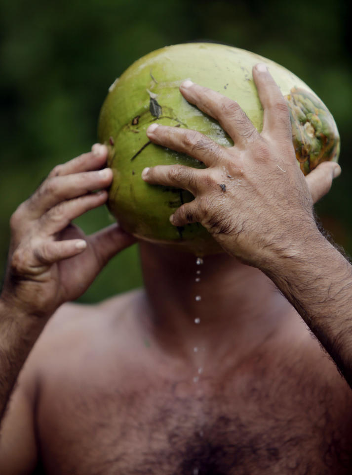"In this photo taken Wednesday Aug. 24, 2011, Yoandri Hernandez Garrido, 37, known as ""Twenty-Four,"" drinks juice from a coconut in Baracoa, Guantanamo province, Cuba. Hernandez is proud of his extra digits and calls them a blessing, saying they set him apart and enable him to make a living by scrambling up palm trees to cut coconuts and posing for photographs in this eastern Cuban city popular with tourists. Known as polydactyly, Hernandez's condition is relatively common, but it's rare for the extra digits to be so perfect. (AP Photo/Javier Galeano)"