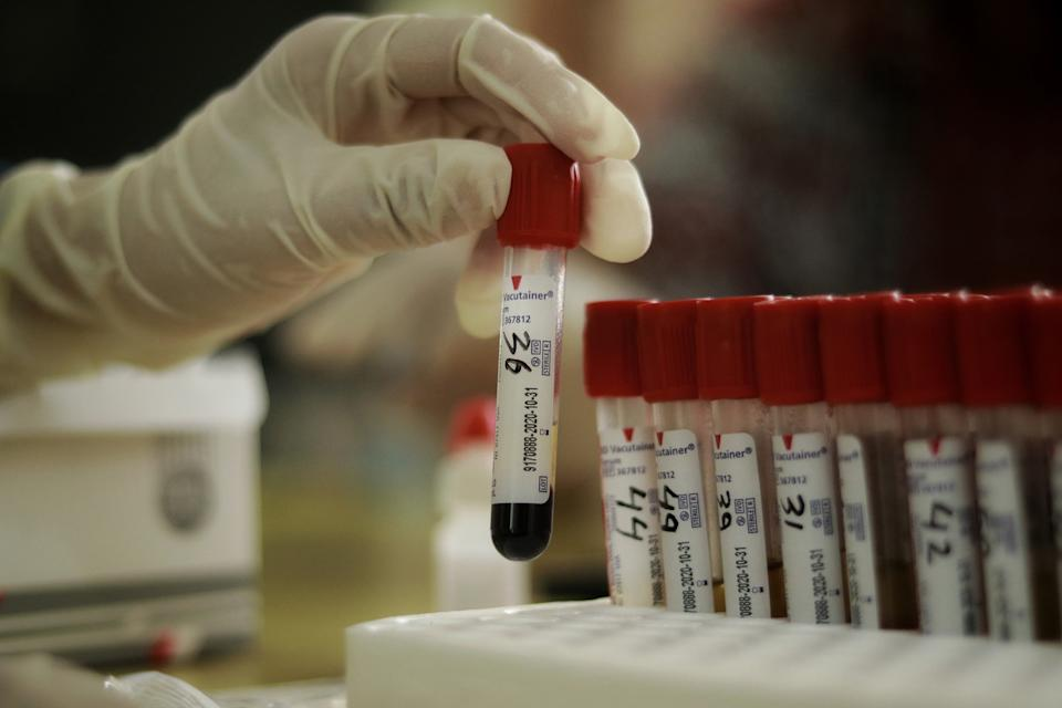A medical arranging test tubes with blood samples for COVID-19 antibody testing at hospital in Bangka Belitung Islands, Indonesia, May 16, 2020. Based on Indonesian government data on Saturday, 529 new cases of Covid-19 in the last 24 hours, a total of 17,025 cases of Covid-19 in Indonesia. (Photo by Irwan Aulia Rachman / INA Photo Agency / Sipa USA)