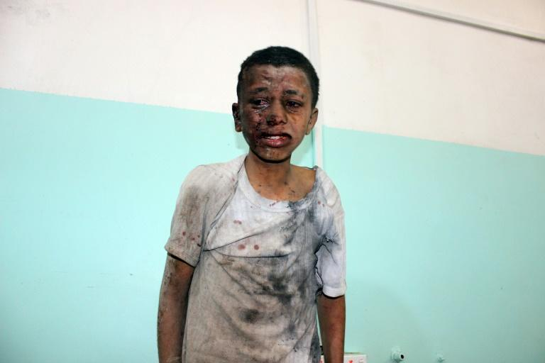 A Yemeni boy at a hospital after he was wounded in an air strike in Saada province on August 9, 2018, which killed 40 children