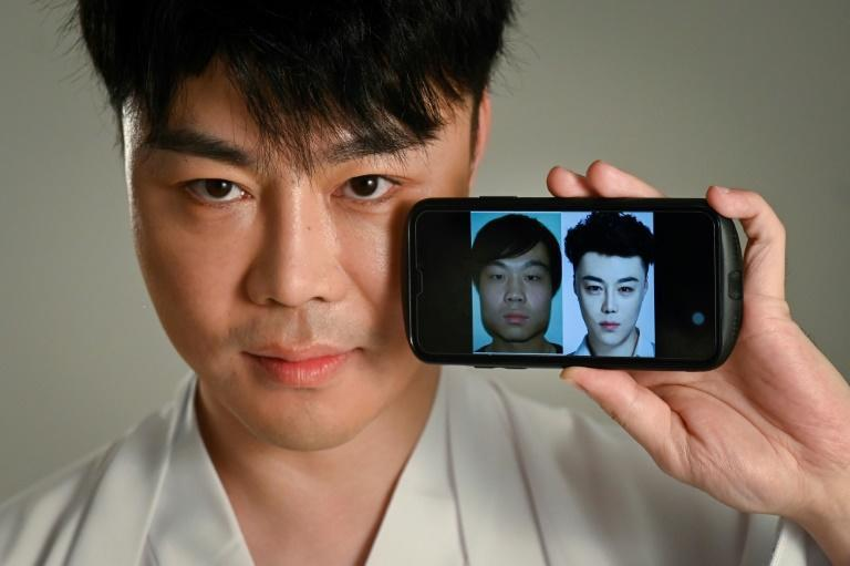Chinese actor and model Nai Wen has had more than 60 procedures on his face, including laser treatments (AFP/WANG ZHAO)