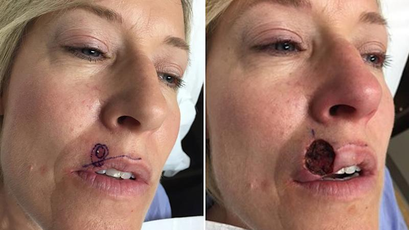 A woman thought a spot on her lip was just a pimple, it turned out to be something much more sinister. Source: TODAY
