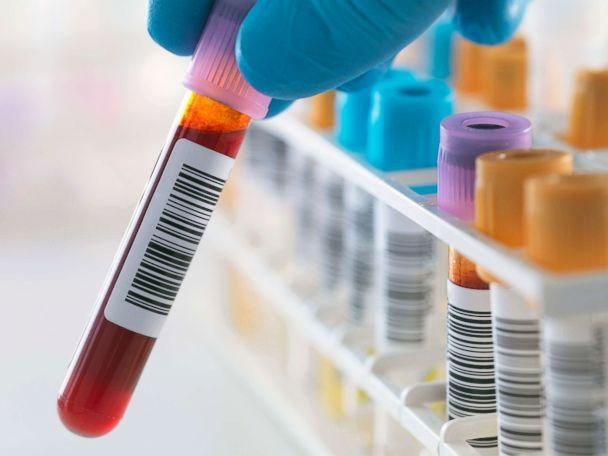 Blood samples are seen here in a stock photo. (STOCK PHOTO/Getty Images)
