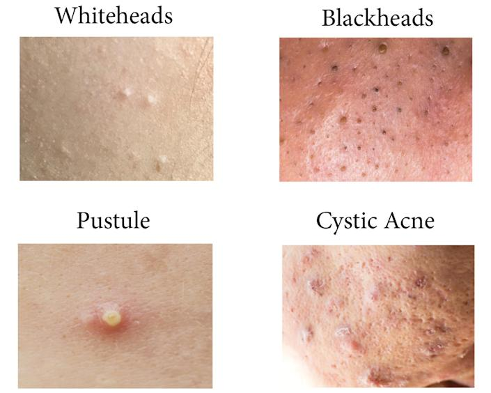 Dr Pimple Popper Reveals The Type Of Acne You Should Never Pop