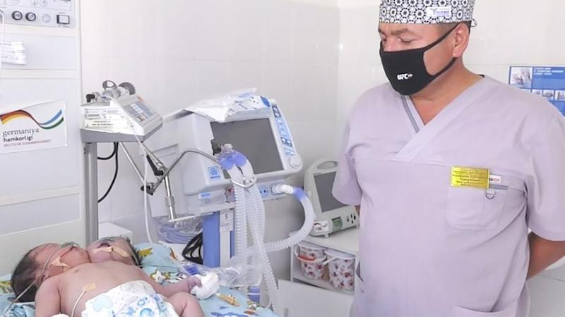 A physician looks at the twins, who are being cared for at an Uzbekistan hospital. Source: East2West/australscope