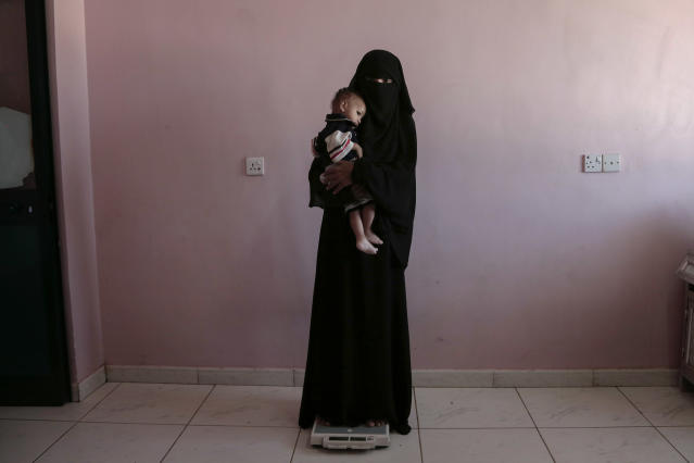 <p>Umm Mizrah, a 25-year-old Yemeni woman, holds her son Mizrah on a scale in Al-Sadaqa Hospital in the southern Yemen city of Aden in this Feb. 13, 2018 photo. Rageh, who is nearly into the second trimester of her pregnancy, weighed 38 kilograms (84 pounds), severely underweight. Mizrah, who was 17 months old, weighed 5.8 kilograms (12.8 pounds), around half the normal weight for his age. (Photo: Nariman El-Mofty/AP) </p>