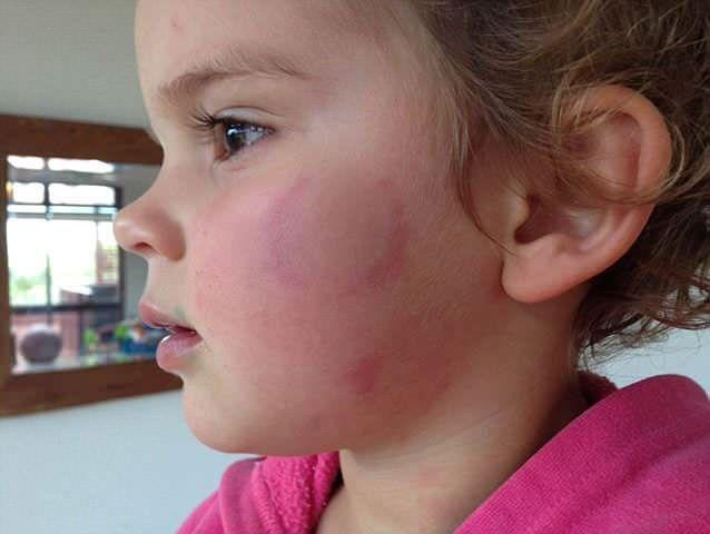 Eva emerged from the Virgin Active crèche with bite marks and black eyes. Photo supplied and used with permission from mother Kristel Ness.