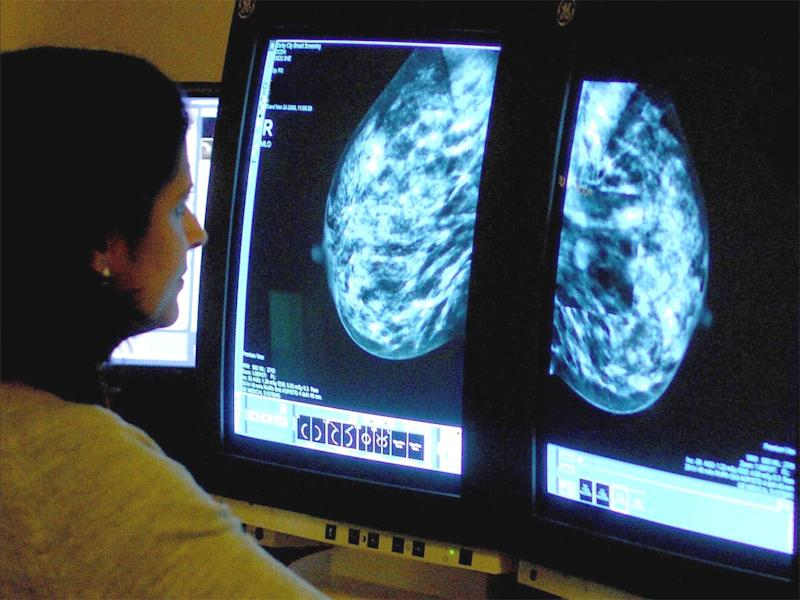 Breast cancer is the most prevalent type of cancer in the UK ( PA)